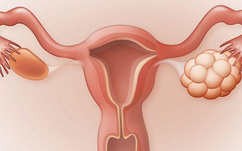 روش های درمان تنبلی تخمدان